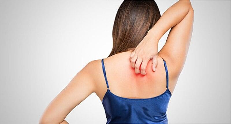 wanita gatal di punggung
