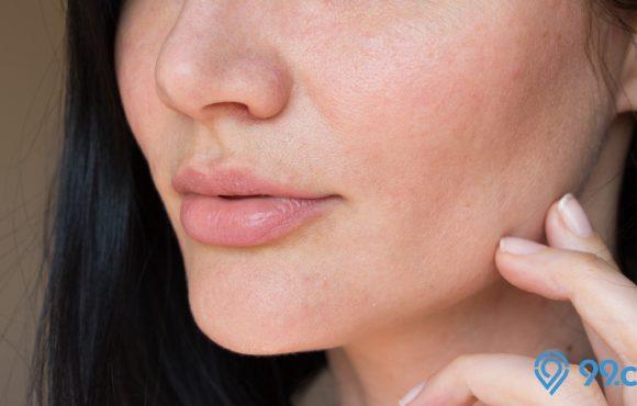cara mengatasi kulit kusam