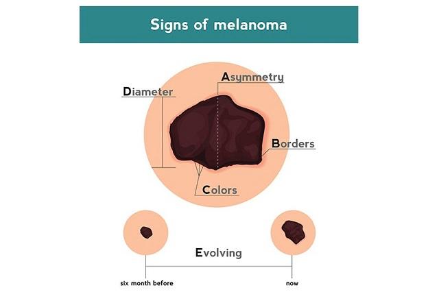 gejala kanker kulit tahi lalat