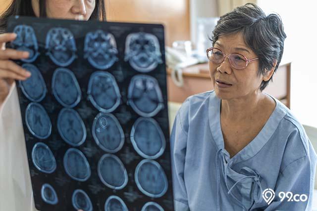 cara mengatasi alzheimer