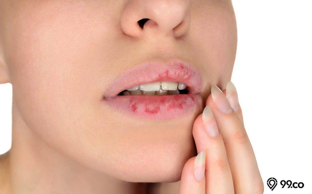 manfaat vaseline repairing jelly untuk bibir keirng