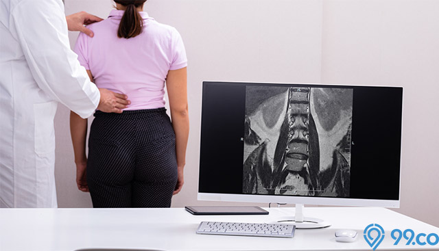 cara memperbaiki postur tubuh