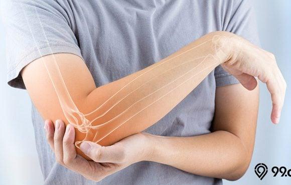 osteoporosis tulang anak muda