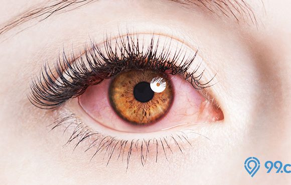 cara mengatasi mata merah