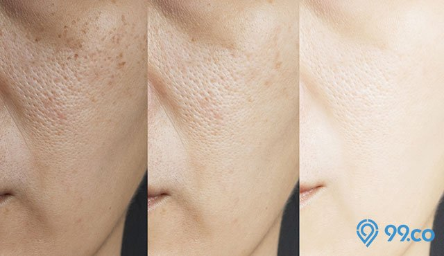 9 Cara Mengecilkan Pori Pori Wajah dengan Masker dan Bahan Alami. Hasilnya Permanen!