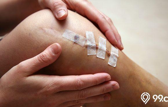 cara menghilangkan bekas luka dengan bahan alami