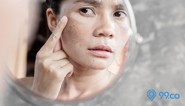 9 Cara Menghilangkan Flek Hitam Di Wajah Dengan Bahan Alami