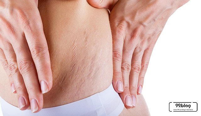 cara menghilangkan stretch mark