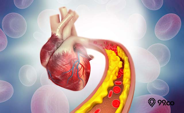 menjaga kolesterol tubuh