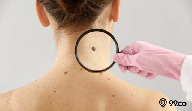 ciri ciri kanker kulit