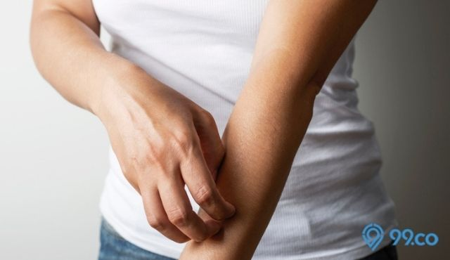 kanker kulit diawali rasa gatal