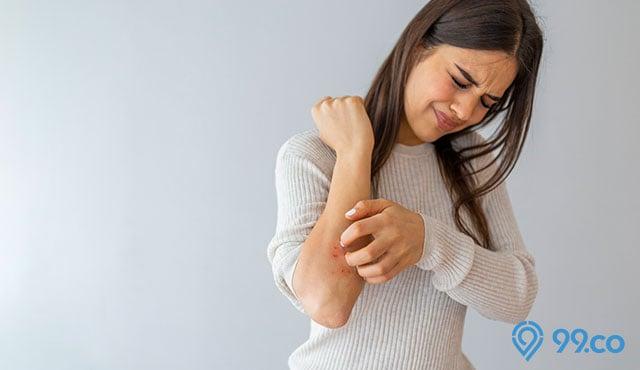 wanita gatal pada kulit
