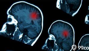 gejala kanker otak
