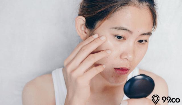 9 Cara Mengatasi Wajah Berminyak Mudah Ampuh Agar Tak Berjerawat