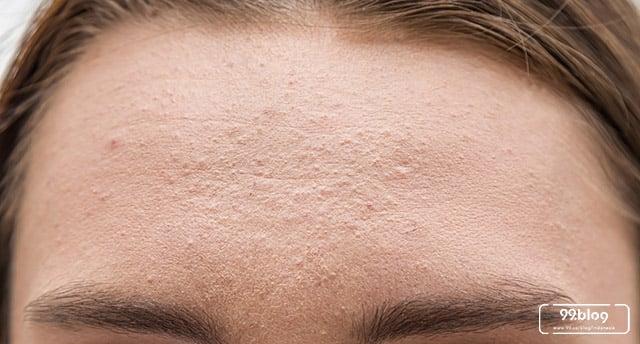 Make Up Untuk Menghilangkan Jerawat Kecil Kecil
