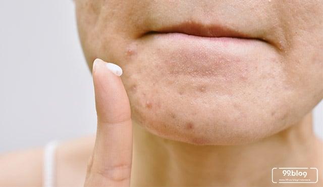 Cara Alami Mengatasi Jerawat Dan Infeksi Pada Kulit Wajah