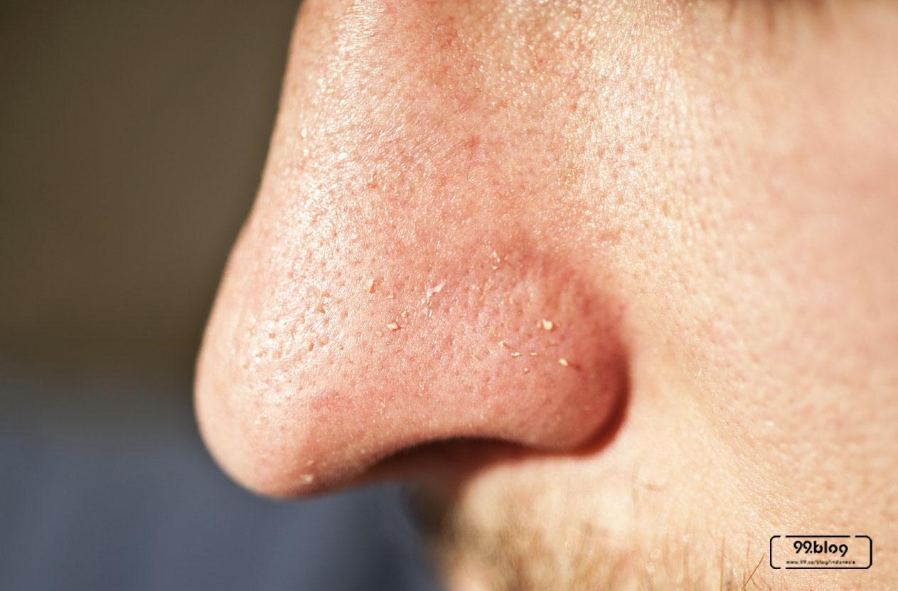 komedo di wajah