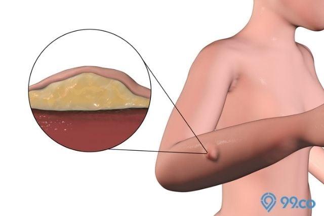 penyakit lipoma