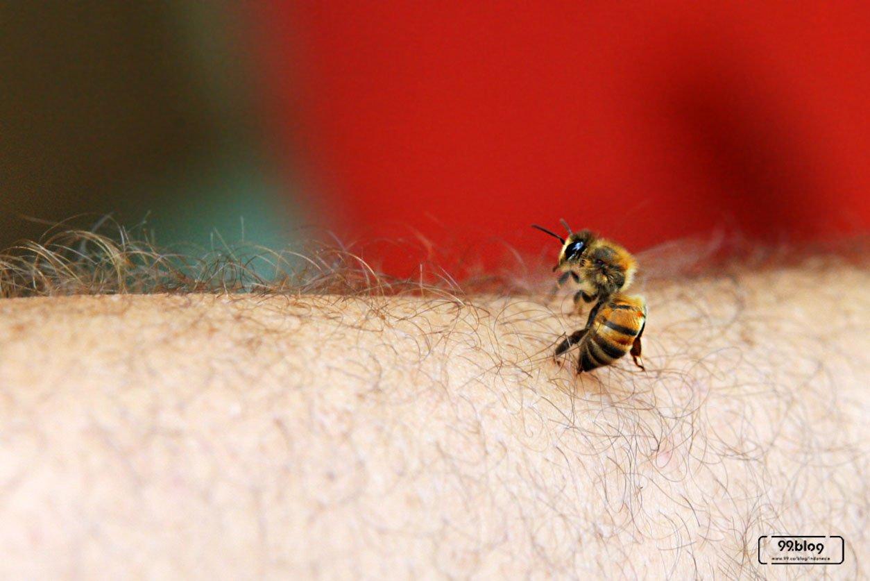 obat disengat lebah