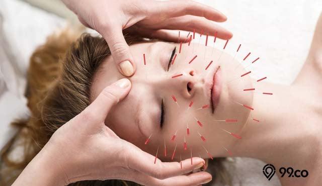 manfaat akupuntur