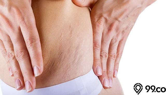 stretch mark pada perut
