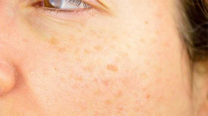 manfaat daun salam kulit wajah