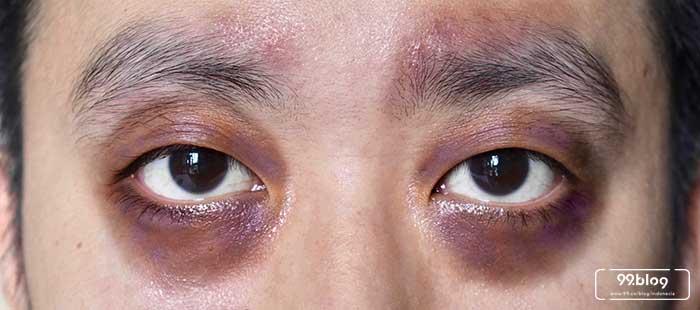 11 Cara Menghilangkan Mata Panda Cepat Khasiatnya