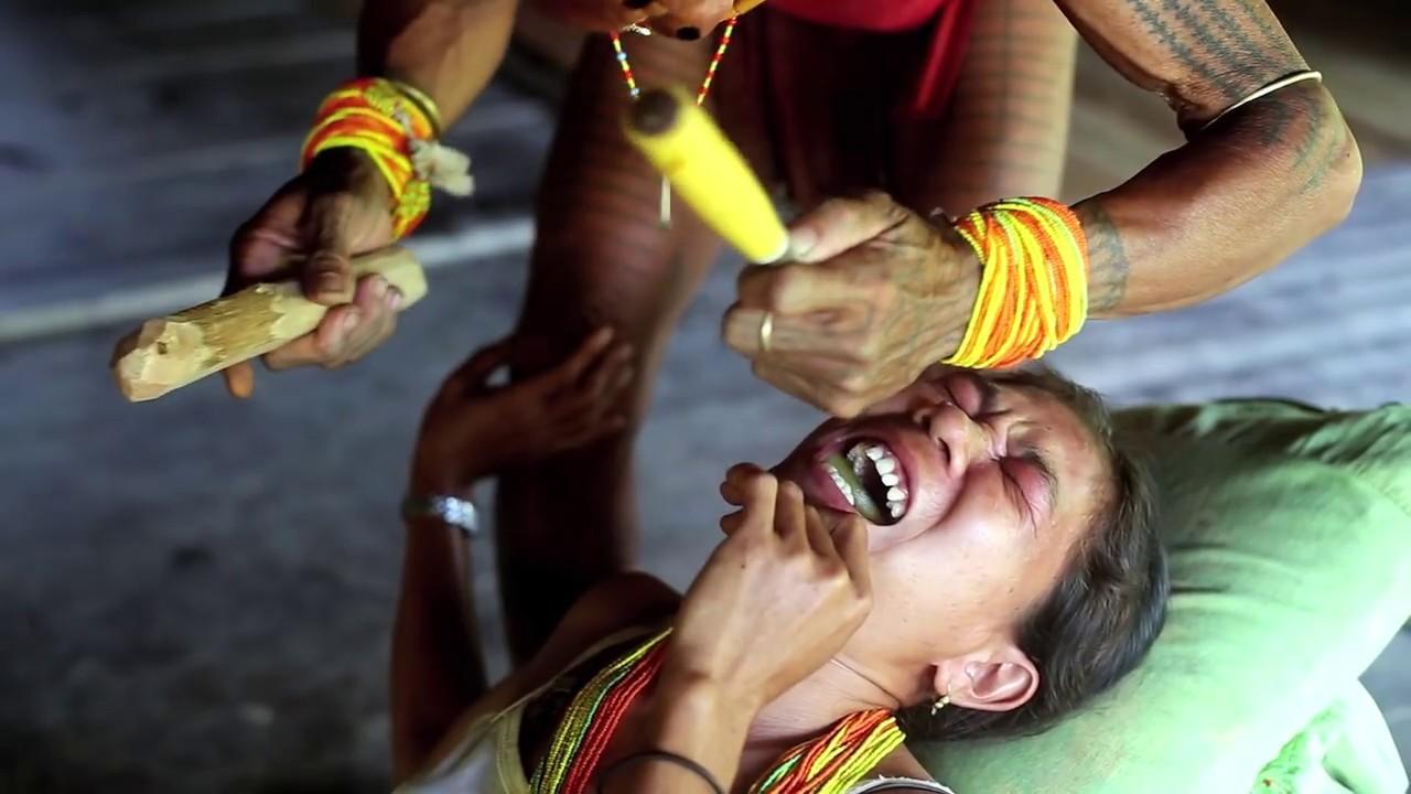 tradisi menyakitkan bagi perempuan