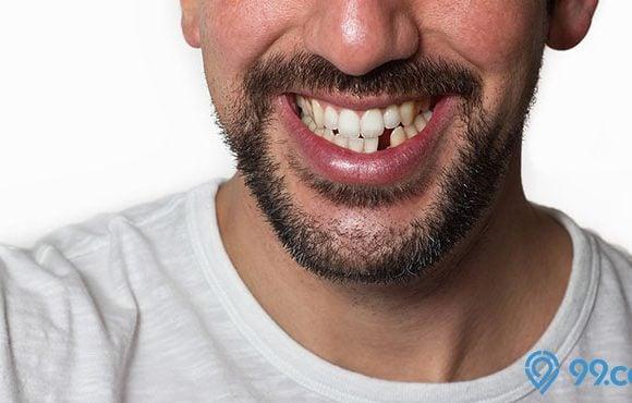 arti mimpi gigi bawah copot