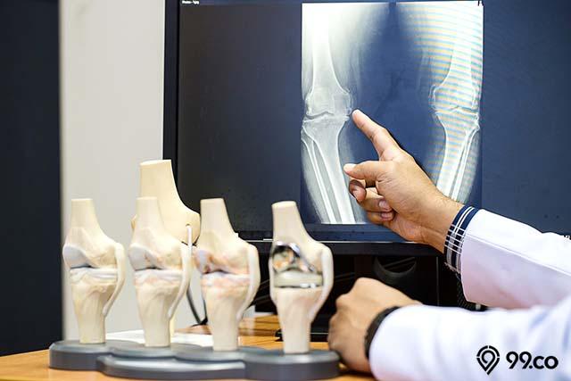 zat tembaga untuk cegah osteoporosis