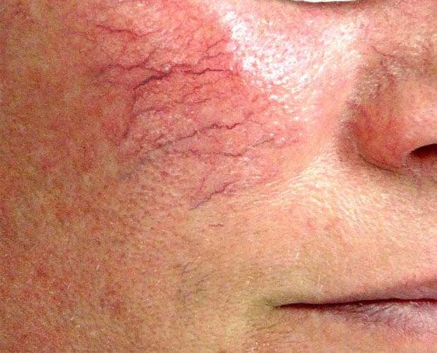 pembuluh darah di wajah