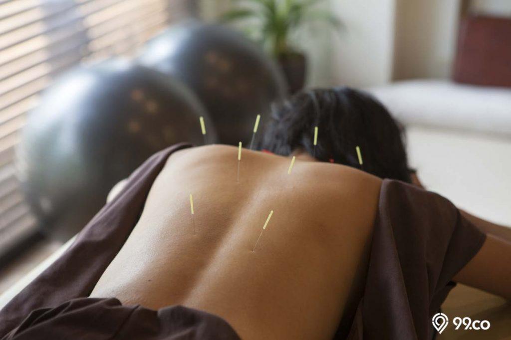 perawatan akupuntur