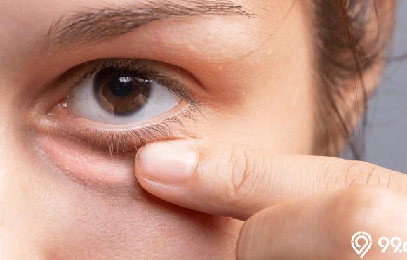 cara mengatasi mata bengkak