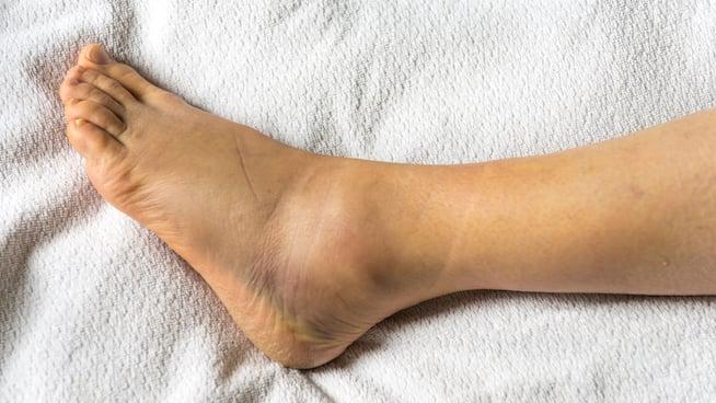kaki sakit keseleo