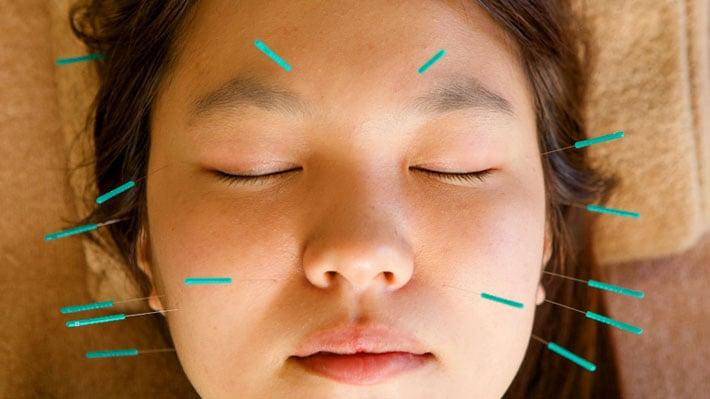 manfaat akupuntur kulit wajah