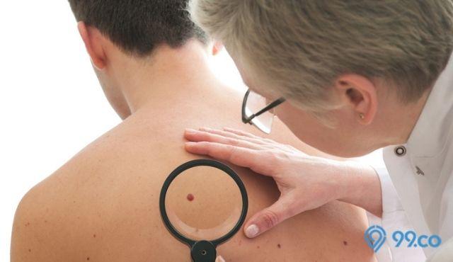 ciri ciri kanker kulit pada tahi lalat