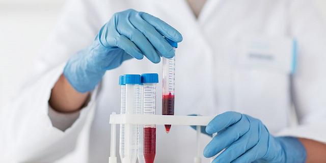 terapi plasma darah