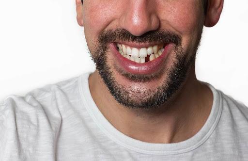 ♖ Mutakhir Arti mimpi cabut gigi kiri atas