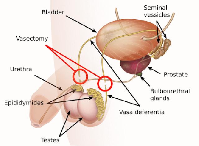 kontrasepsi vasektomi