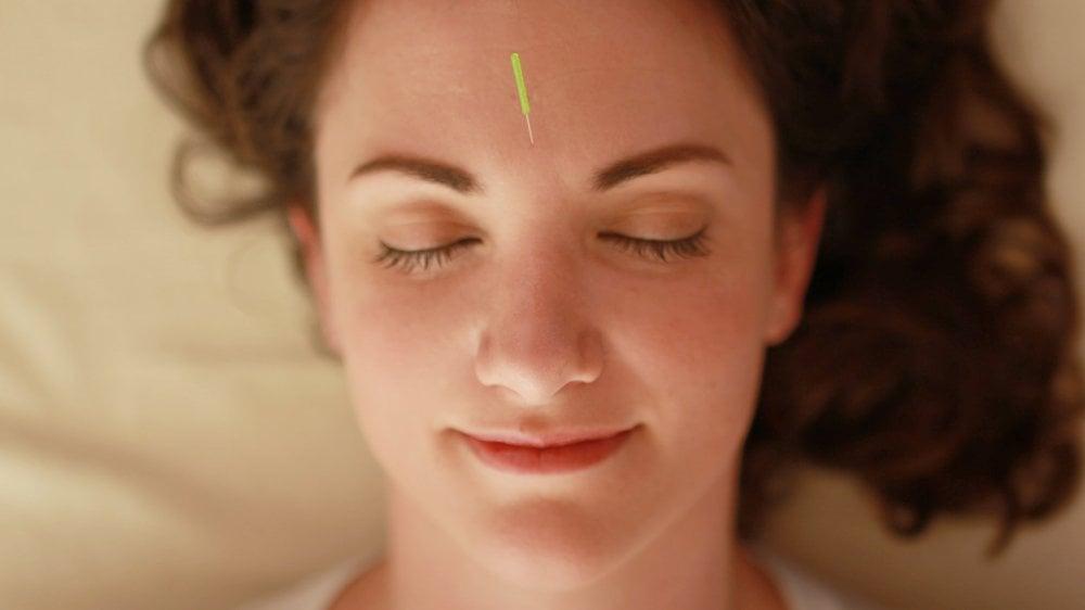 perawatan akupuntur wajah